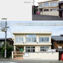 01-beforeafter-facade